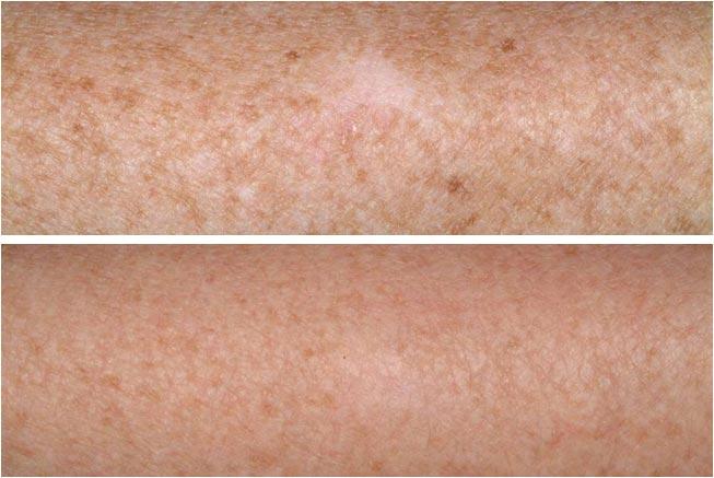 La photo des taches blanches de pigment sur le corps