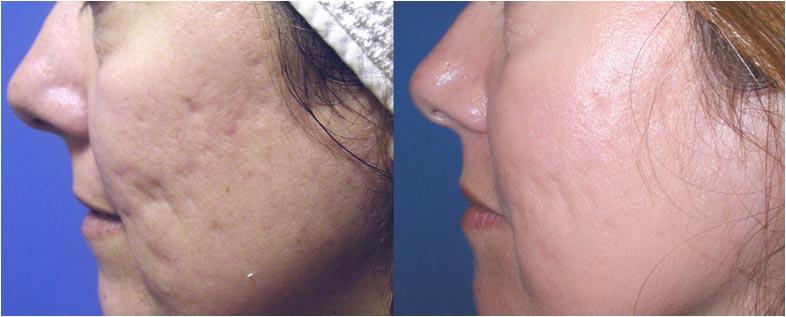 Photo Avant Apr 232 S Laser Anti Acn 233 Centre Esth 233 Tique