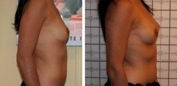 augmentation seins poitrine opération martinique chirurgie esthétique