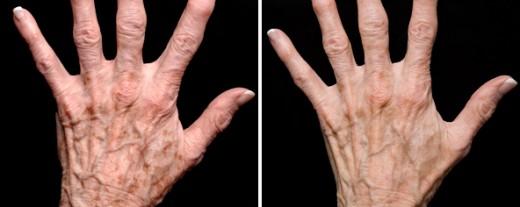 fraxel acide hyaluronique peeling mains taches martinique
