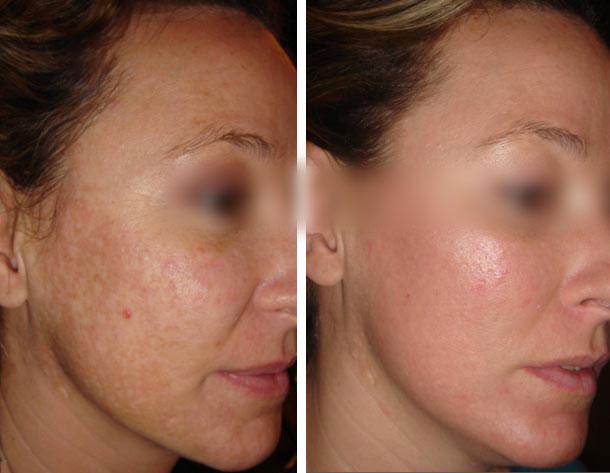 Favori tâches brunes solaires et hormonales visage,mains et jambes  DA31
